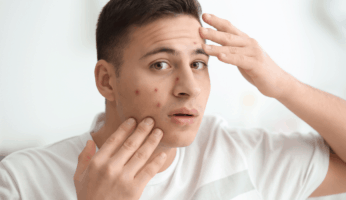 man with acne on his face looking for help