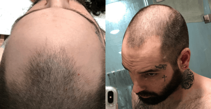 my personal FUE hair transplant journey