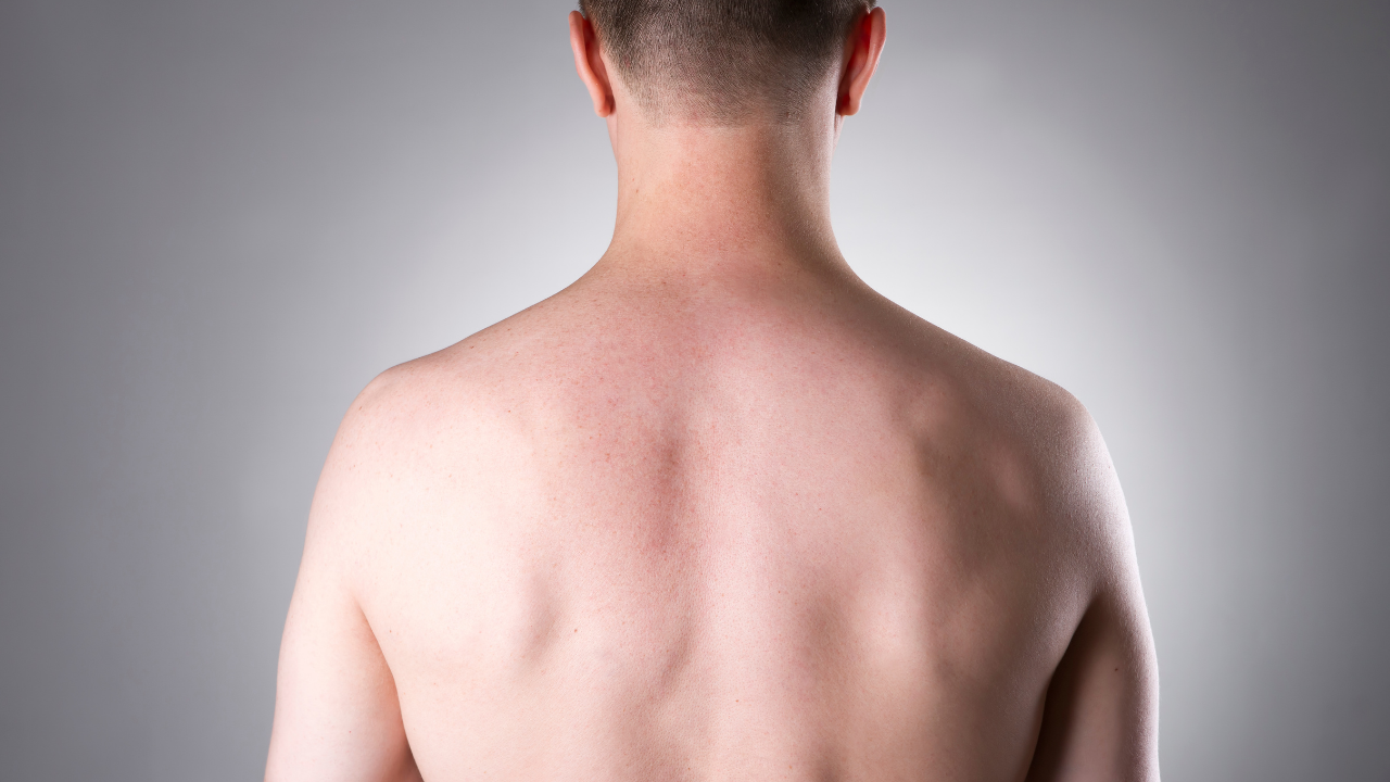 how to remove back hair