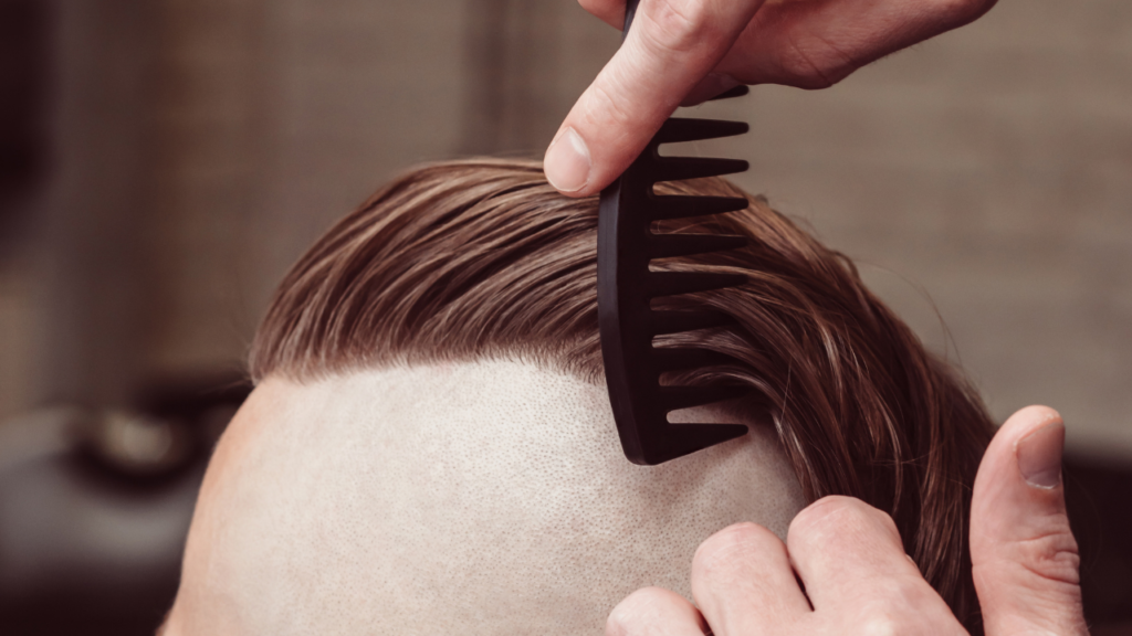 image of a man with an undercut
